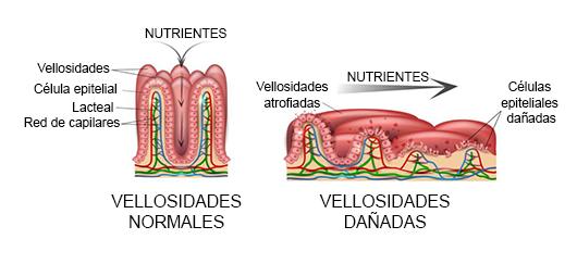 intestino dañado por celiaquía