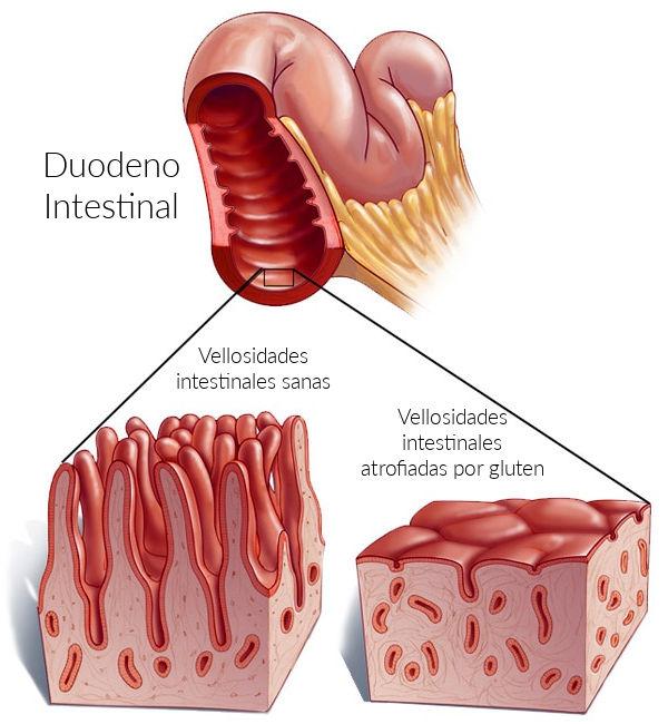 Intestino dañado por ingesta de gluten